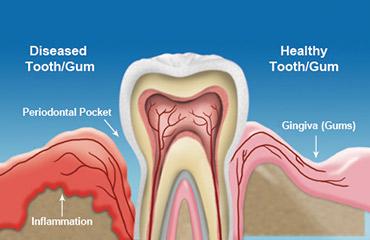 gum-disease3
