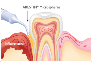 periodontal-gum-disease-treatment