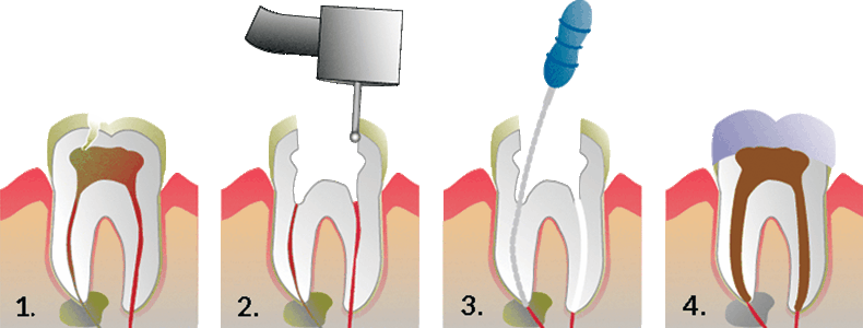 root-canals-3