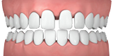 Invisalign Clear Teeth Straightening